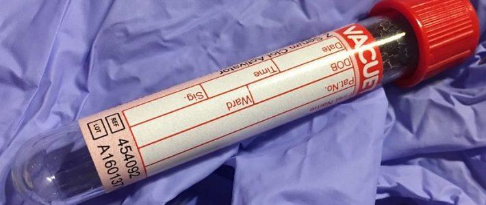 Blutbild lesen und verstehen - Die Aufgaben der Blutzellen